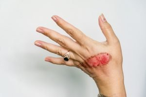 An open wound of woman's hand with thermal burn of second
