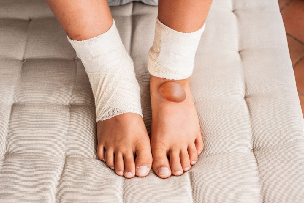 Boy's legs with second degree burn